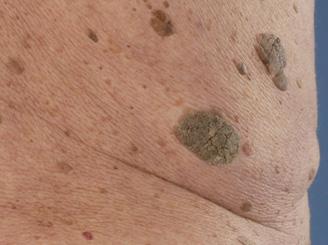 Goedaardige huidoneffenheden Huid Laser kliniek Utrecht