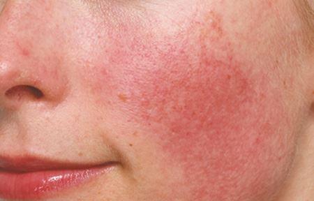 Rosaceo behandeling egale roodheid Huid-Laser-kliniek-Utrecht