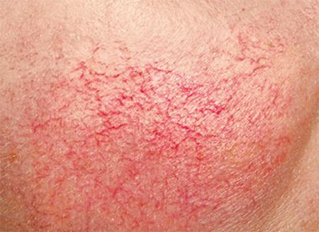 Vaatlaser couperose behandeling Huid-Laser-kliniek-Utrecht