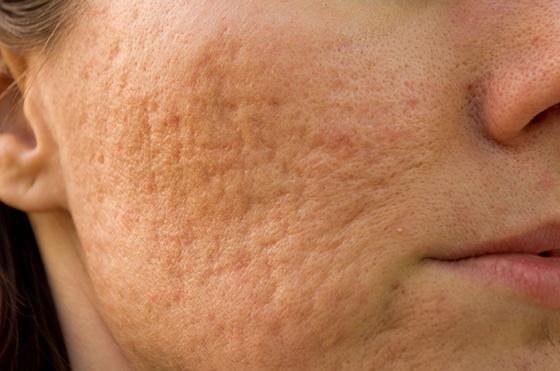 acne littekens Huid & Laser Utrecht