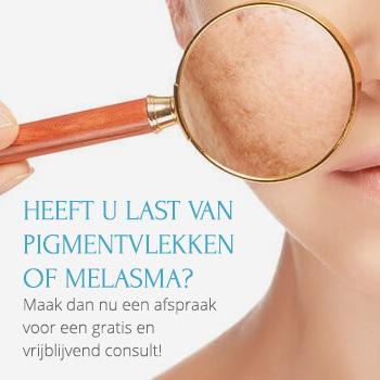 pigmentvlekken-melasma-Huid-Laser-Utrecht